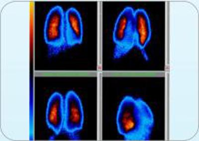 medicina nuclear San Miguel, El Salvador, spect perfusion pulmonar